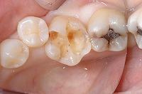 ③むし歯を除去