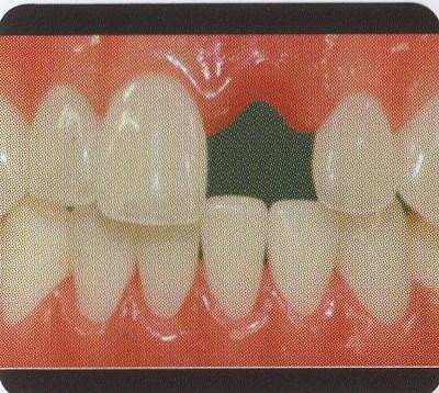 ヒューマン前歯1