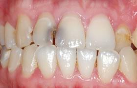 変色した前歯の症例1