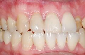 変色した前歯の症例2