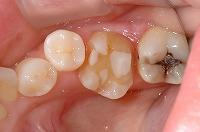 ④むし歯が深い箇所にレーザ照射後してセメントで埋めた後形を整え型取りします