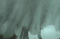 ③レントゲンを撮り根の先まできちんと入っているか?根の曲がり具合なども確認します。