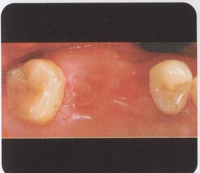 ヒューマン上奥歯1