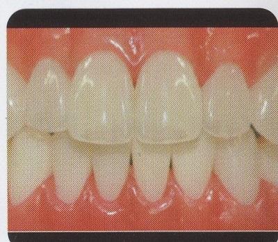 ヒューマン前歯3