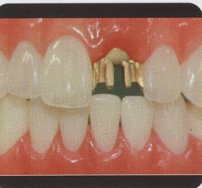 ヒューマン前歯2