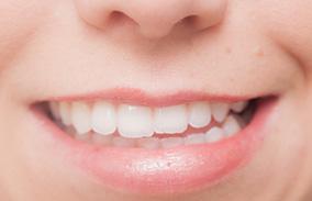 顎の関節に違和感がある 歯ぎしり・くいしばり治療