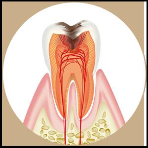 C3 歯髄炎