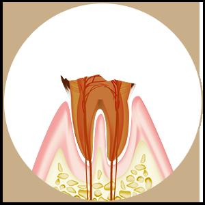 C4 残根と根の先端の病巣