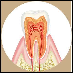 CO むし歯になりかけている、まだむし歯ではない治療