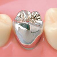 銀歯(こだわらないので保険で)