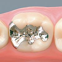 銀歯(パラジウム合金)