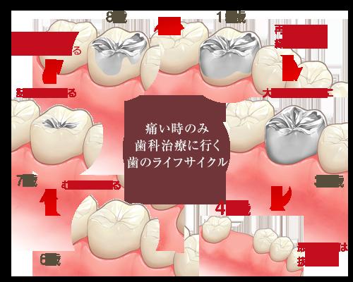 痛い時のみ歯科治療に行く歯のライフサイクル
