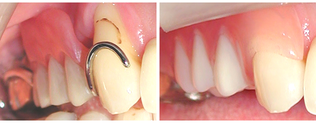 保険義歯とスマイルデンチャーの比較