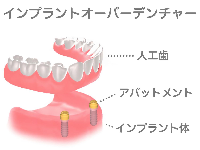 「インプラント+入れ歯」オーバーデンチャー