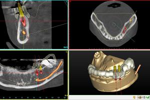 歯科用CTとシムプラントによる治療計画